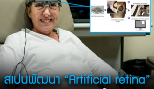 """สเปนพัฒนา """"Artificial retina"""" ช่วยคนตาบอดมองเห็นได้"""