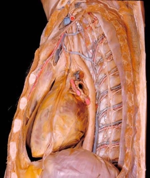 human body dissection 12
