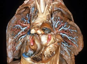 human body dissection 16
