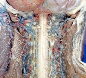 human body dissection 17