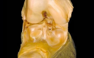 human body dissection 19